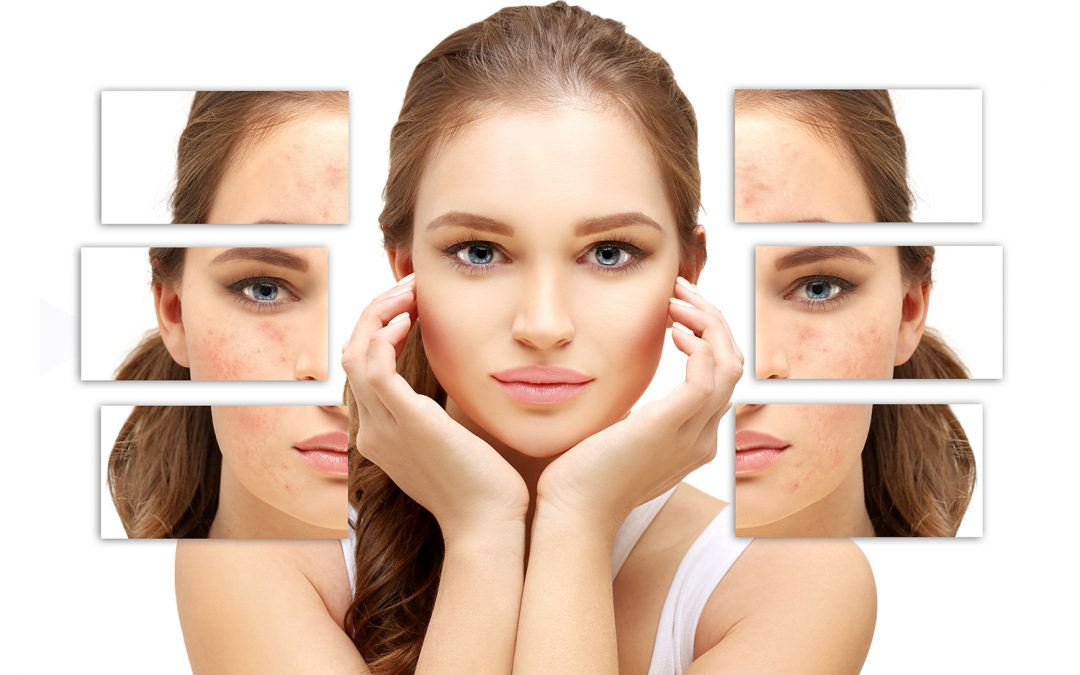 Clear Skin Fast : How To Make Your Skin Glow Quickly?